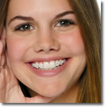 girl with clear braces, porcelain braces