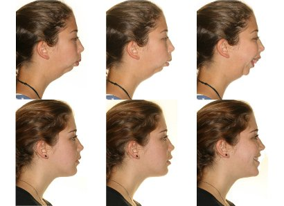 orthognathic surgery, jaw surgery,