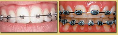 speed braces, fast orthodontics
