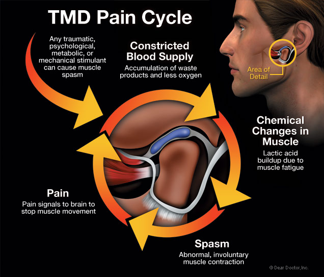 TMD, pain in jaw joint